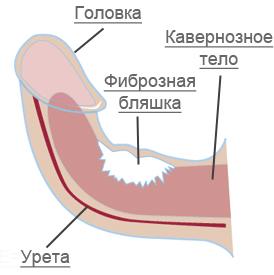 a pénisz görbülete otthon