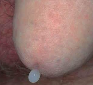 gonorrhoea a péniszen)