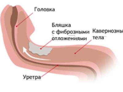 a pénisz görbületének kijavítására