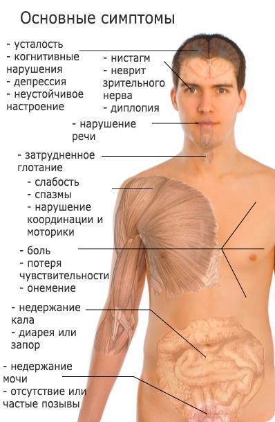 baklosan és erekció)