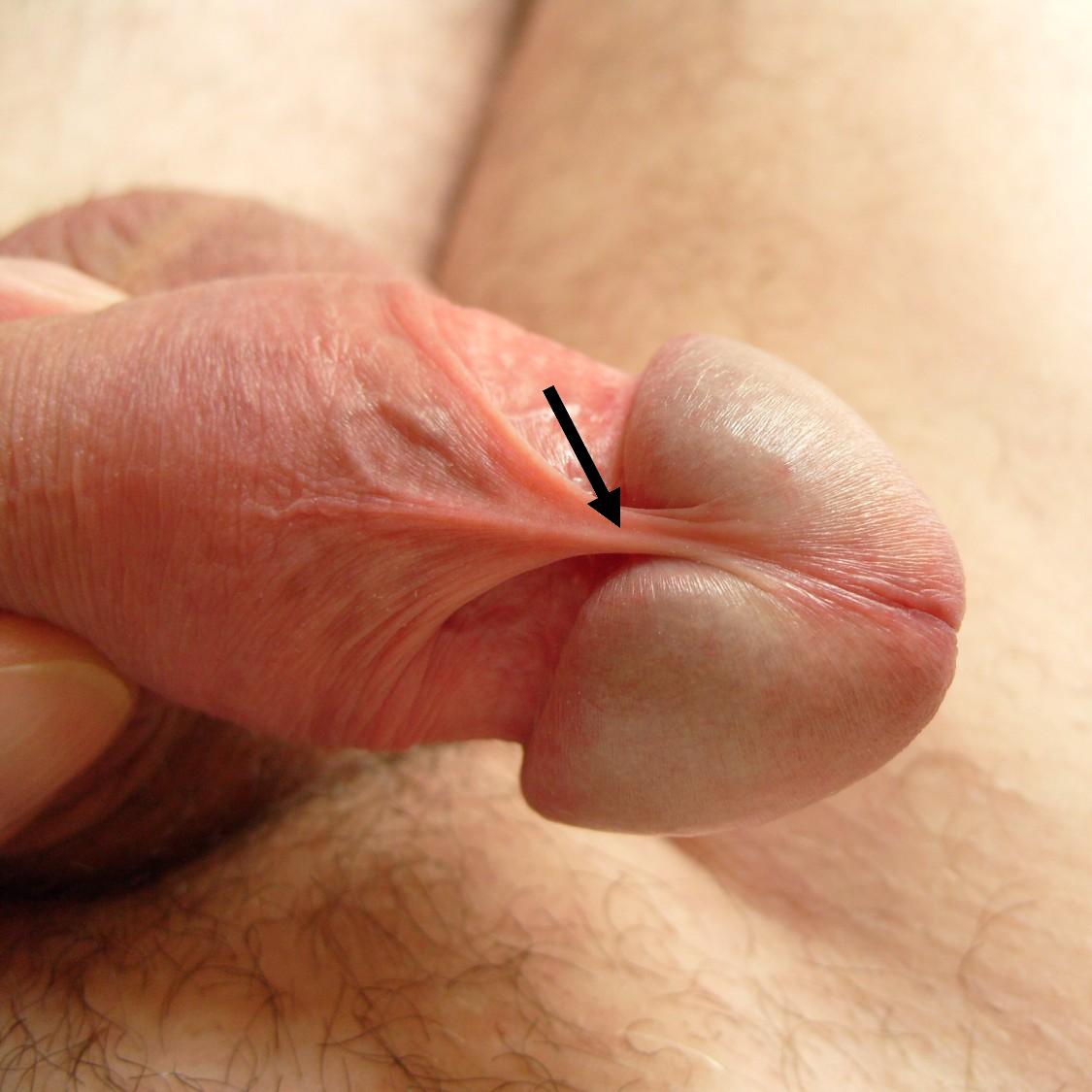 erekcióval a frenulum fáj)