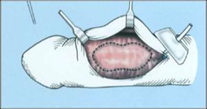 a pénisz görbületének okai