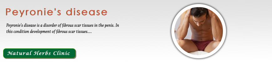 peyronie erekciója a prosztatagyulladás befolyásolja az erekciót