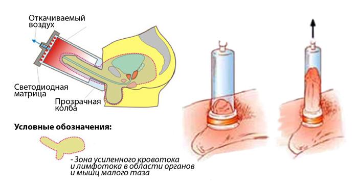 erekciós vákuumszivattyúk)