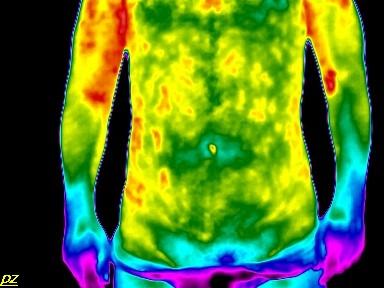mit kell kezdeni erekcióval krónikus prosztatagyulladás esetén