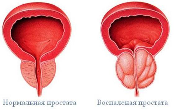 Erekció hiánya prosztatagyulladással
