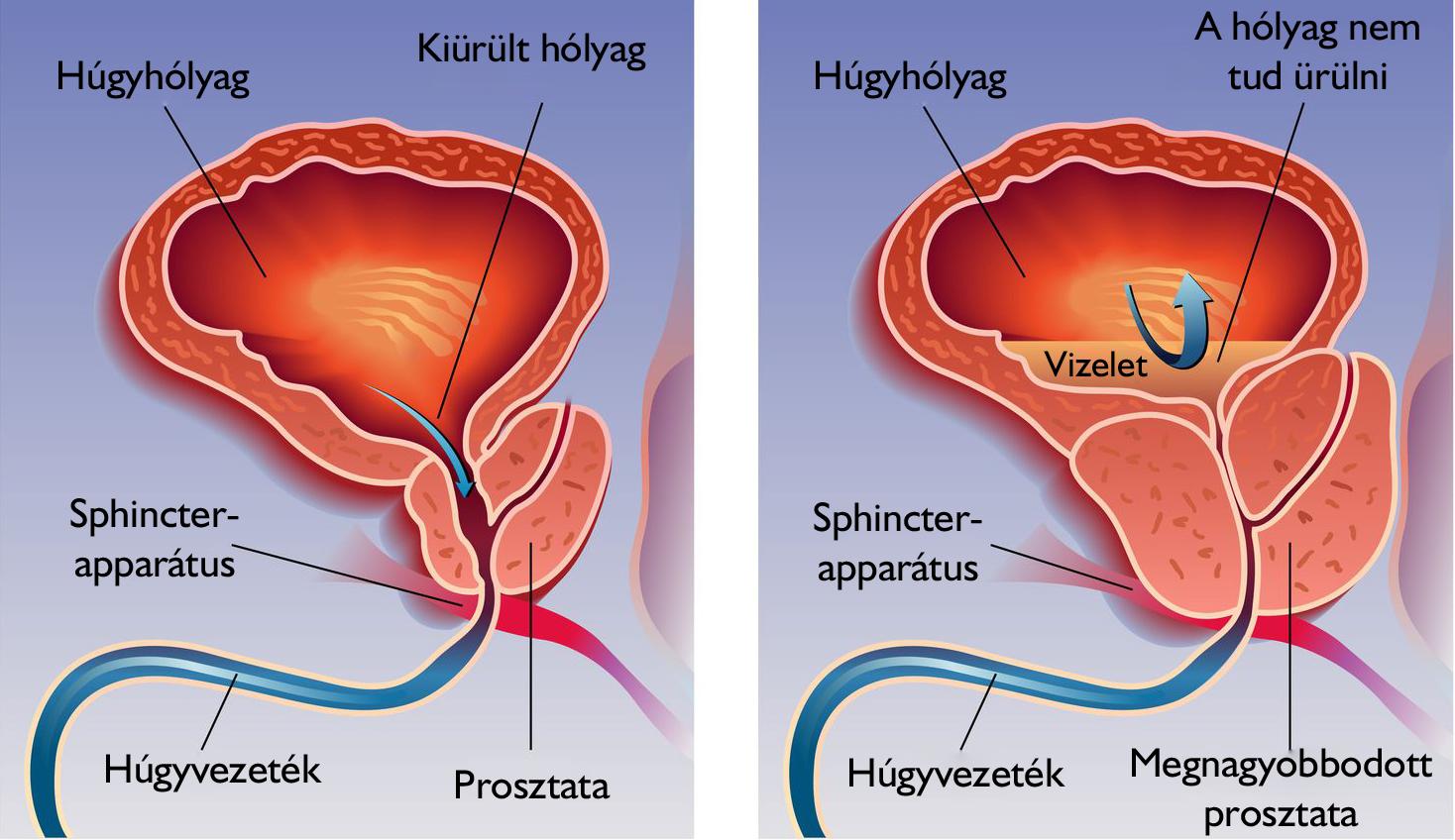 prosztata az erekció során)