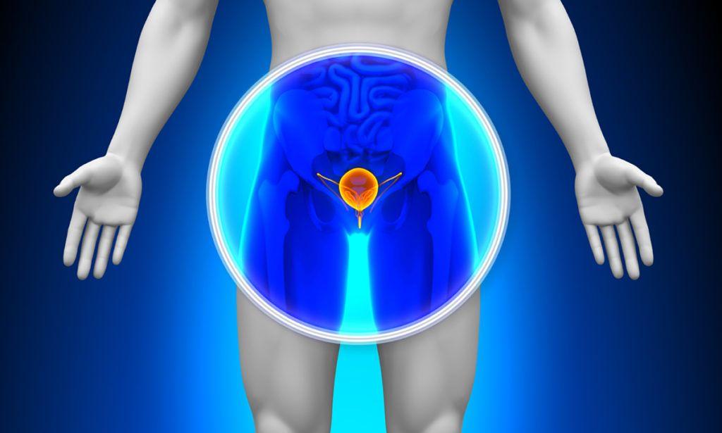 csökkent erekció krónikus prosztatagyulladás esetén)