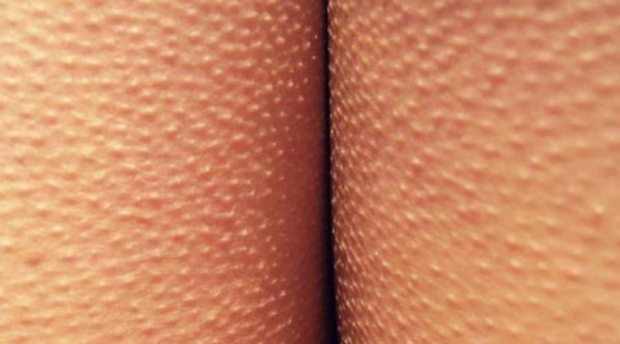 miért van a pénisz görbülete gyakori merevedés, amelyet követ