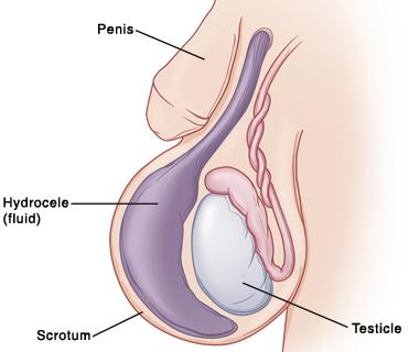 az erekció és a fasz petyhüdt hogyan lehet helyreállítani a merevedést