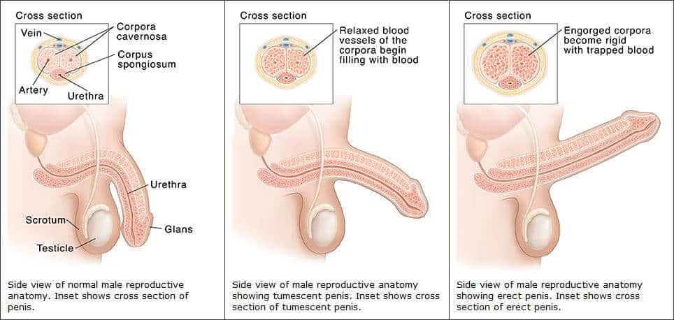 sclerosis multiplex és merevedési problémák)