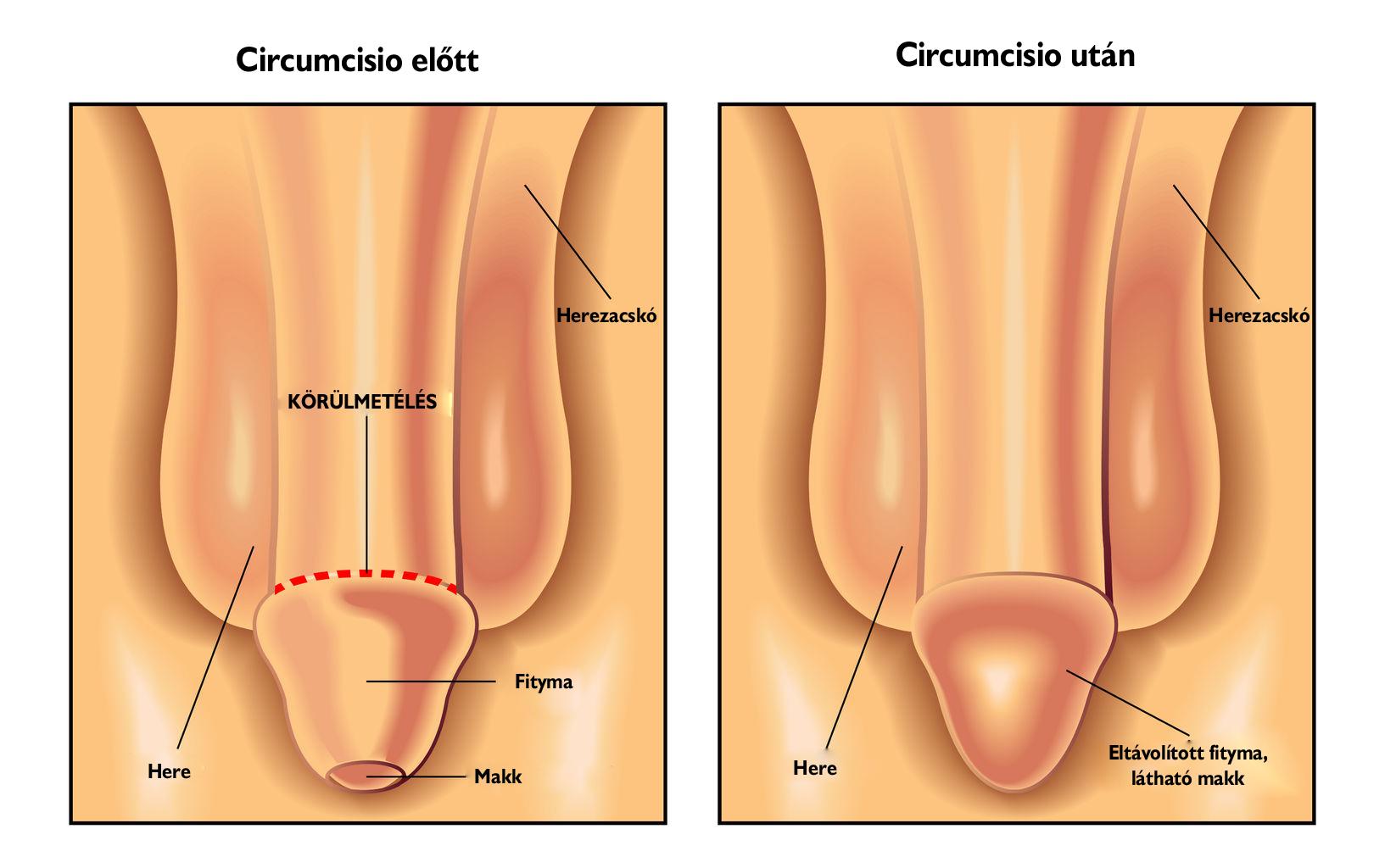 A pénisz rendellenességei
