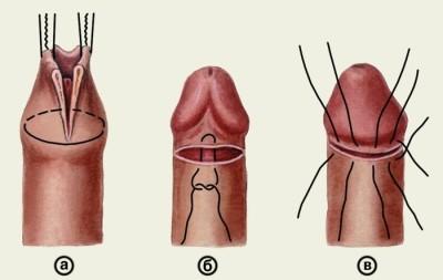 a pénisz nincs teljesen kitéve)