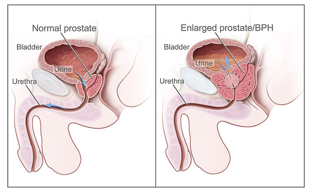 a prosztata masszázs segíti az erekciót
