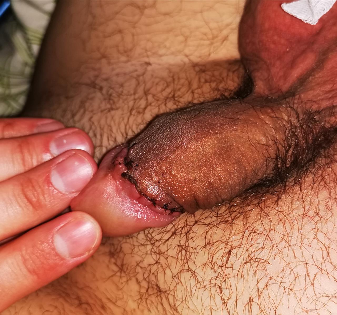 mit kell kezdeni a körülmetélés utáni merevedéssel miért a férfiaknak különböző a péniszük