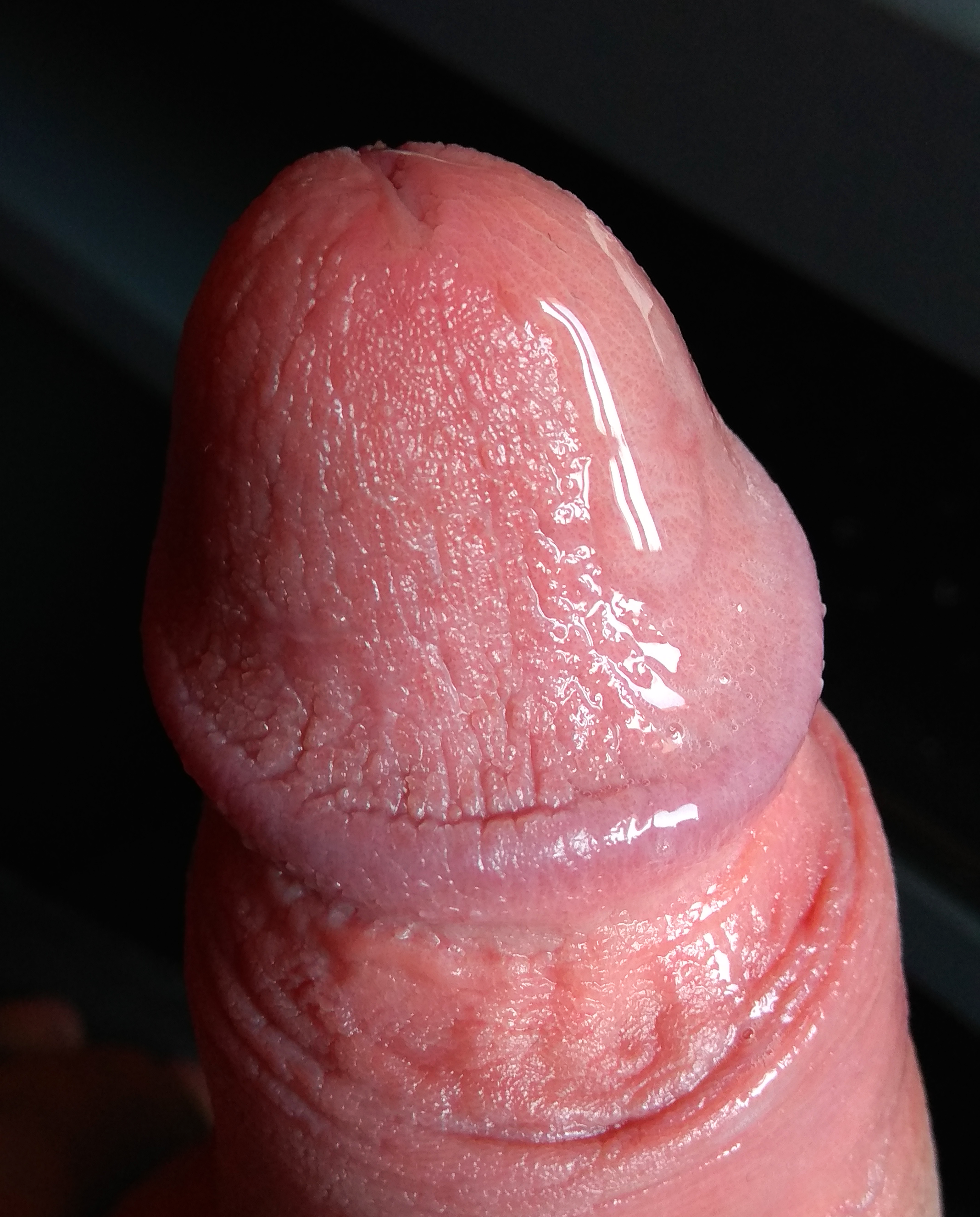 pénisz fotó erekcióban