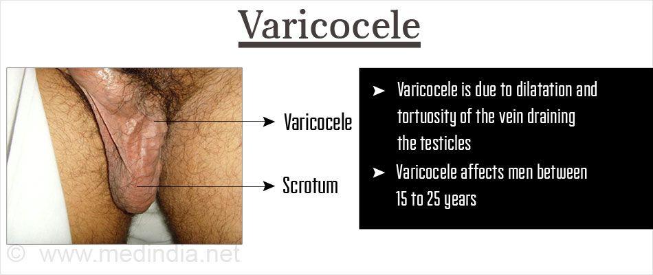 Hogyan befolyásolja a varicocele a hatékonyságot?