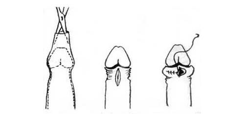 erekció körülmetélési öltések után)