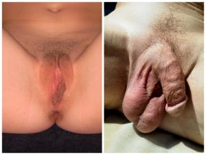 hány cm-es pénisz van a férfiaknál)