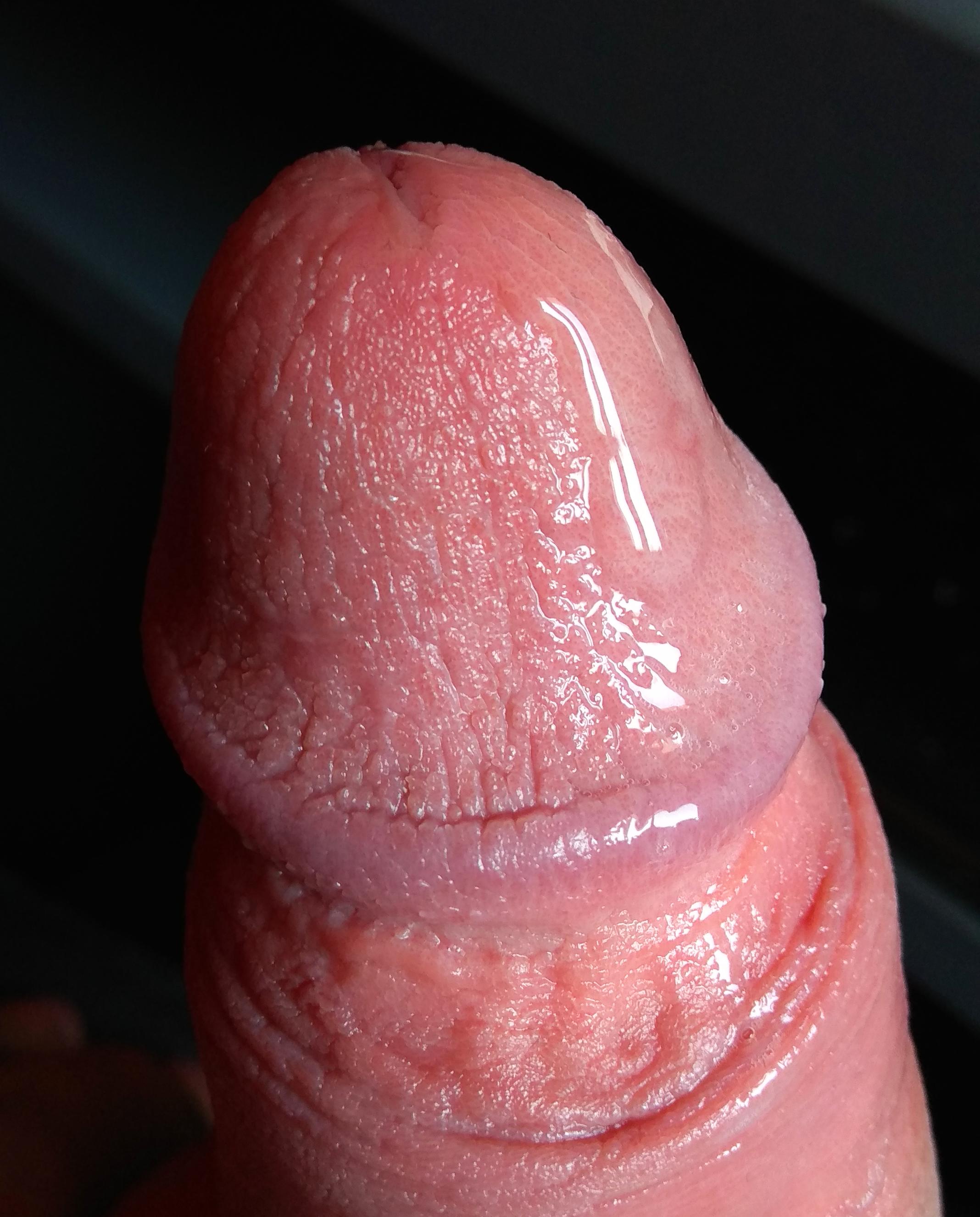 mire szolgálnak a pénisz meghosszabbításai