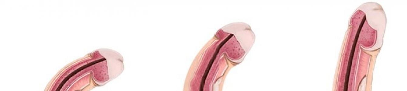 a pénisz alakja és mérete a férfiaknál