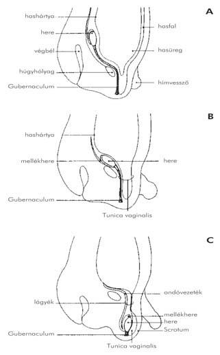 pénisz hajlása balra
