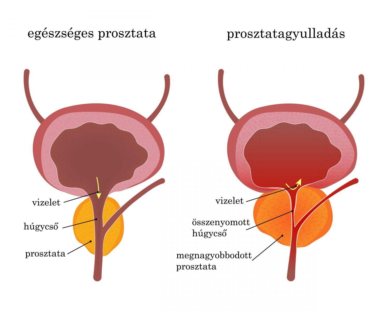prosztatagyulladás kezelése rossz merevedés